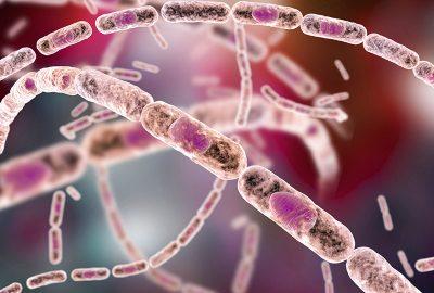 gb MICRO Bacillus anthracis (pXO2)